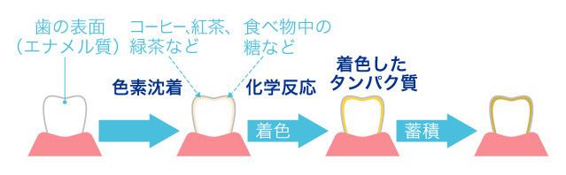 歯が汚れる原因