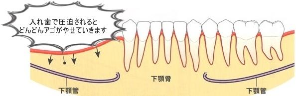 インプラントはお手入れすれば骨や歯ぐきの減少をふせげますが、入れ歯は防げません