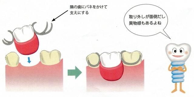 入れ歯とインプラントの比較