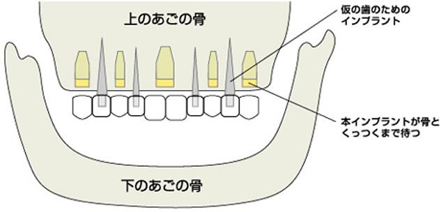 仮歯(固定式 もしくは 取り外し式)について