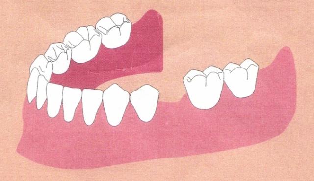 中間の歯を失いました