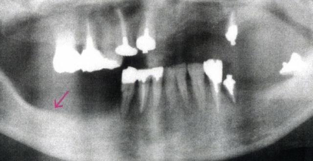 入れ歯を入れる前