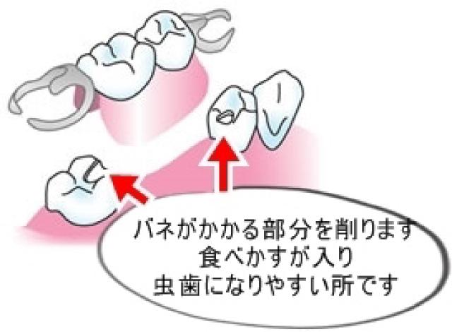 インプラントは隣の歯に負担がかかりませんが、入れ歯は隣の歯に大きな負担をかけます