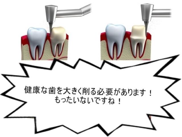 インプラントは隣の歯を削りませんが、ブリッジは隣の歯を削らなければなりません
