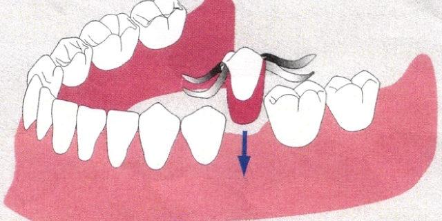 入れ歯との違いは?